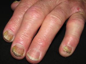 psoriase ungueal