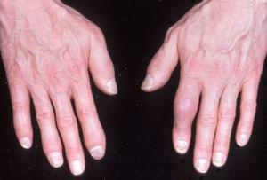 artrite psoriasica3